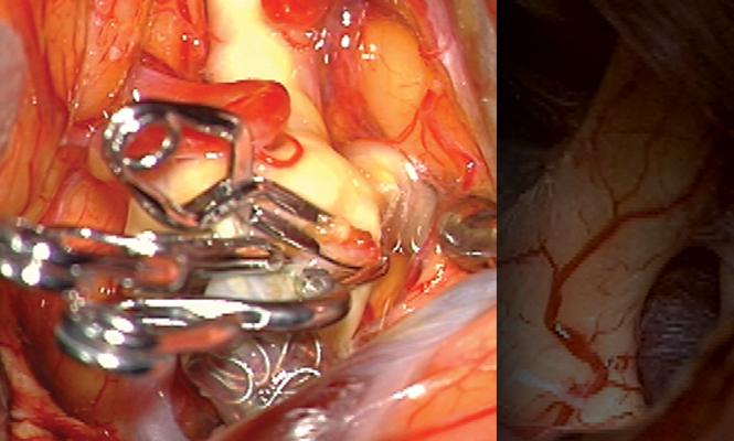 Neurovascular Neurosurgery