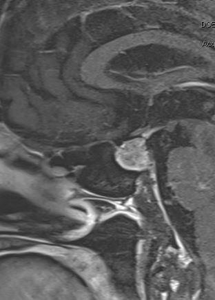 Pituitary mass 2