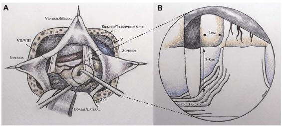 AANS Neurosurgeon Gray Matters: Ventral Pontine (Trigeminal