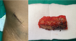 Figure 1A-B. (A) Incision over right anterior iliac crest in preparation for C5 corpectomy and (B) tricortical iliac crest autograft.