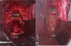 Figure 1C-D. (C) Cervical corpectomy defect with (D) tricortical iliac crest autograft in place.