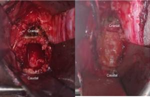 Figure 1C-D. (C) Cervical corpectomy defect with (D) tricortical iliac crest autograft in place.